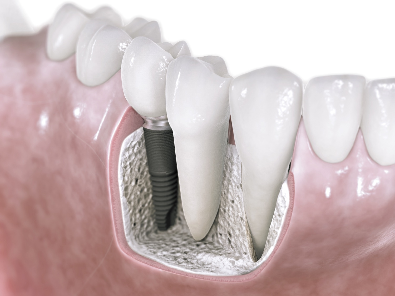 implantes dentales leganés